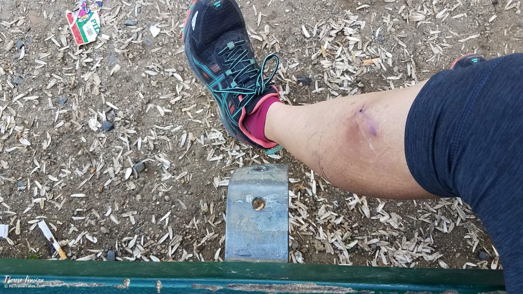 when travel goes wrong - Leg And Bench One Month Later